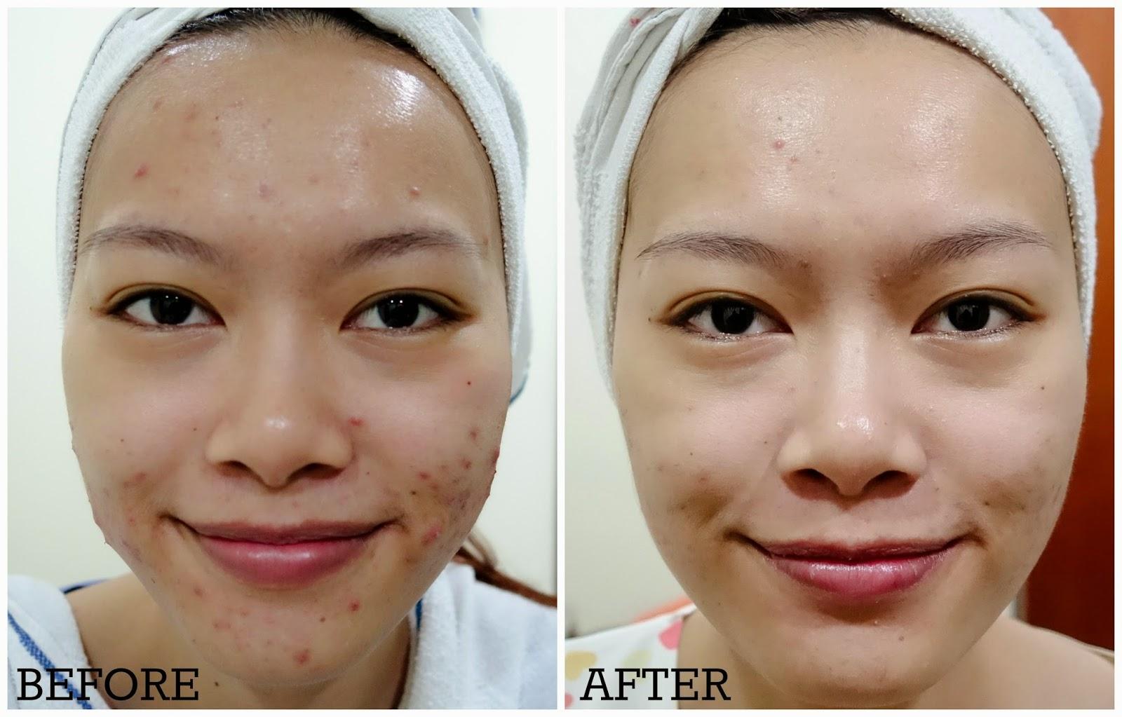 Bệnh nhân sau 6 tuần điều trị mụn với liệu pháp siêu mài mòn da