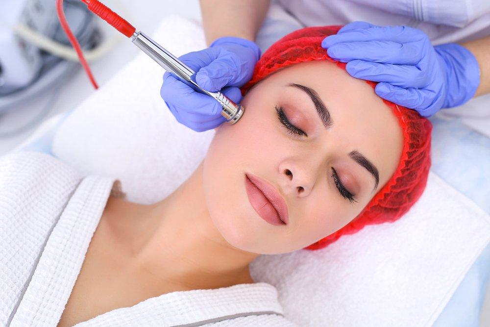 Điều trị sẹo mụn bằng phương pháp mài mòn da
