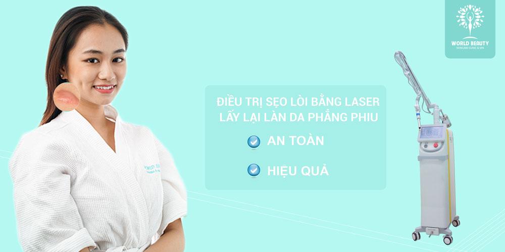 Điều trị sẹo lồi hiệu quả bằng laser tại World Beauty Clinic