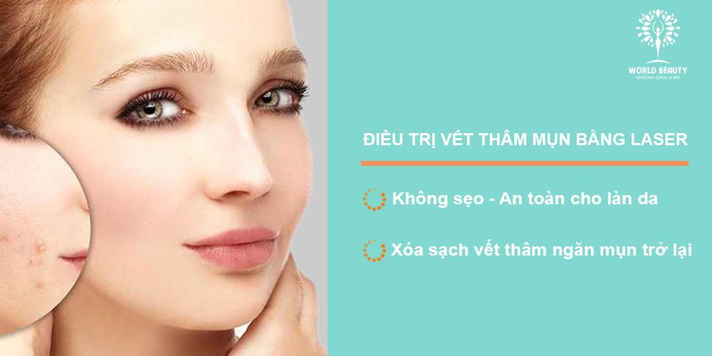 Điều trị thâm do mụn bằng laser - World Beauty Clinic