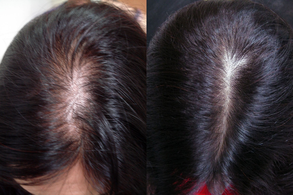 Điều trị rụng tóc bằng laser kết hợp PRP World Beauty Clinic