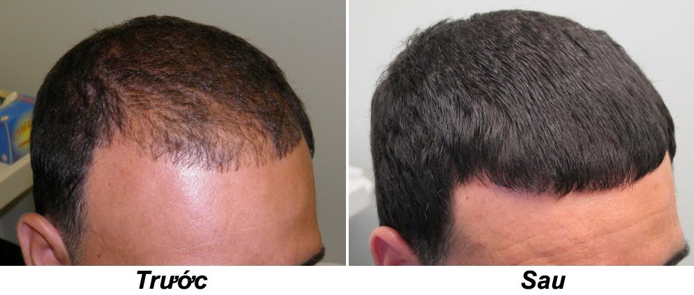 Kết quả điều trị tóc PRP