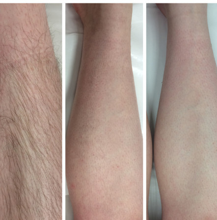 Kết quả liệu trình triệt lông bằng laser