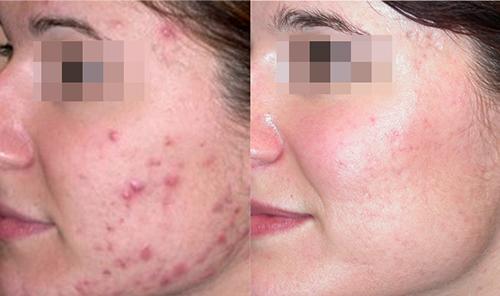 Điều trị mụn laser - World Beauty Clinic