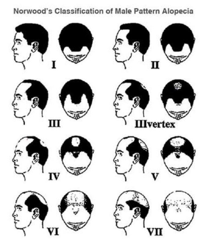 Rụng tóc do rối loạn hoocmon ở Nam nữ
