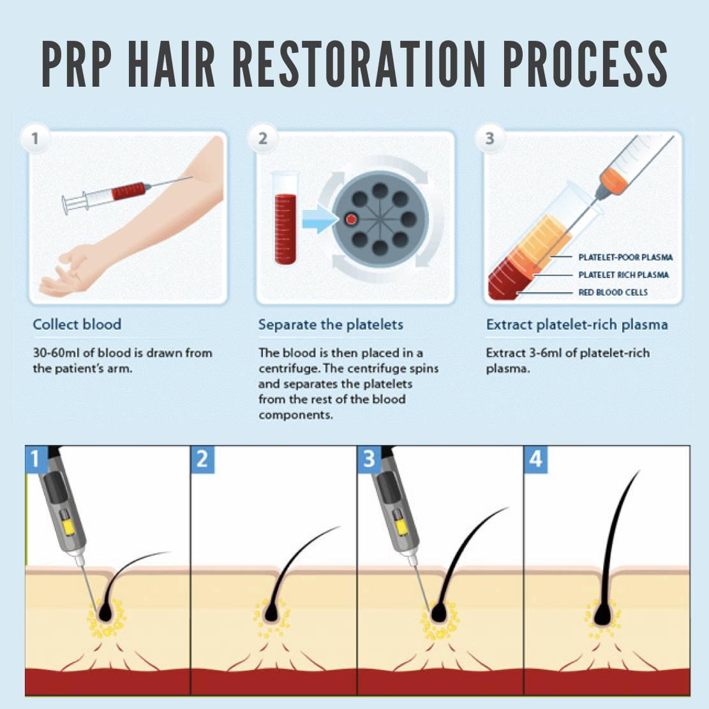 Điều trị rung tóc bằng PRP tại World Beauty Clinic