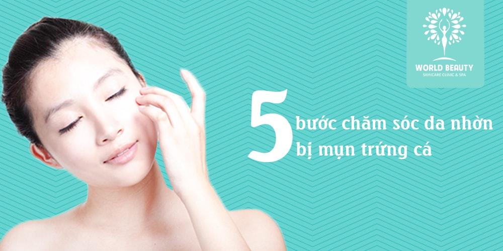 5 cách chăm sóc da mụn tại nhà