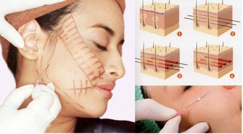 Căng da bằng chỉ sinh học - World Beauty Clinic