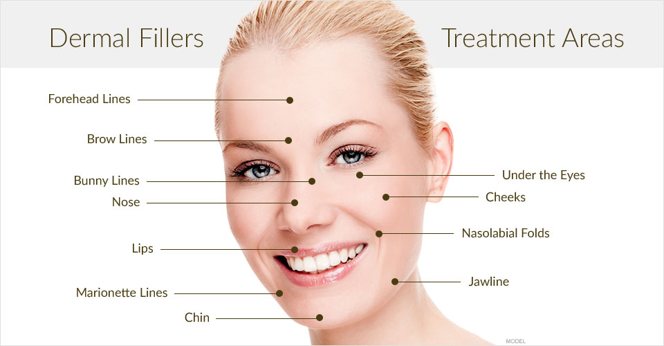 Filler chống nhăn da - World beauty clinic