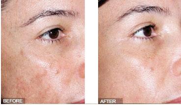 Cải thiện làn da sau khi điều trị nám tại World Beauty Clinic
