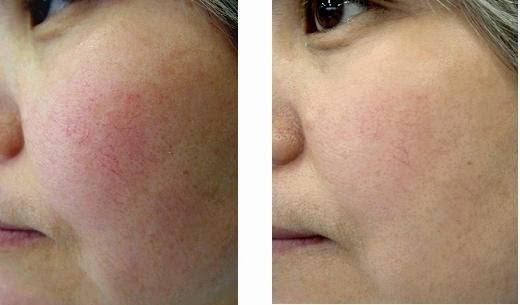 Kết quả điều trị giãn mao mạch tại World Beauty Clinic