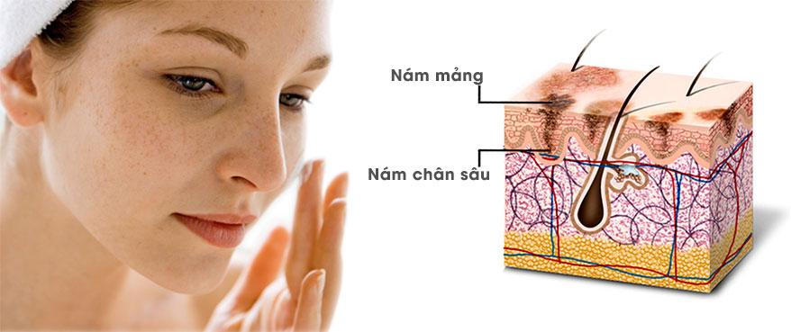 Nguyên nhân bị nám da - World Beauty Clinic