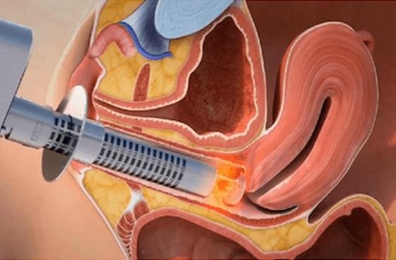 Quy trình trẻ hóa điều trị khô và teo âm đạo