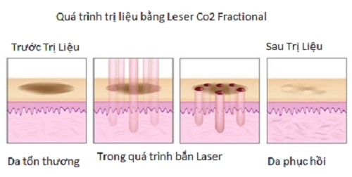 Điều trị sẹo laser co2 - world beauty clinic