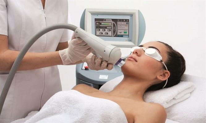 IPL điều trị sắc tố da
