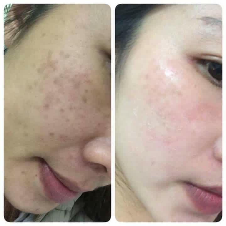 Kết quả điều trị sắc tố trên da