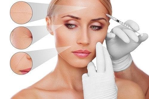 Tiêm filler world beauty clinic