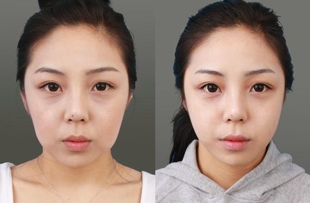 Tiêm filler tao đường net khuôn mặt -World Beauty Clinic