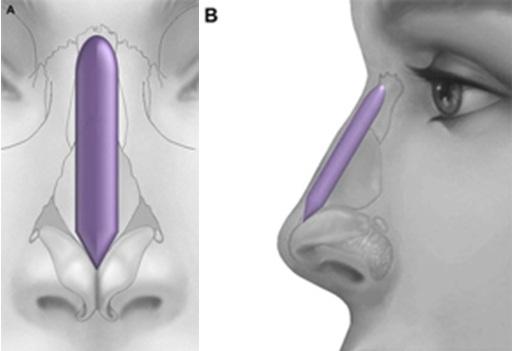 Nâng mũi bằng vật liệu nhân tạo