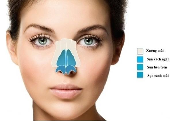 Sửa mũi cấu trúc - World Beauty Clinic