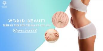 Những bài thuốc trị rạn da bụng sau sinh hiệu quả