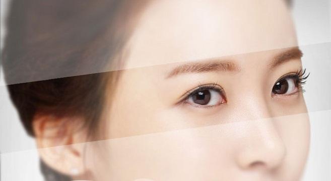 Trường hợp nào cần mở rộng góc mắt?