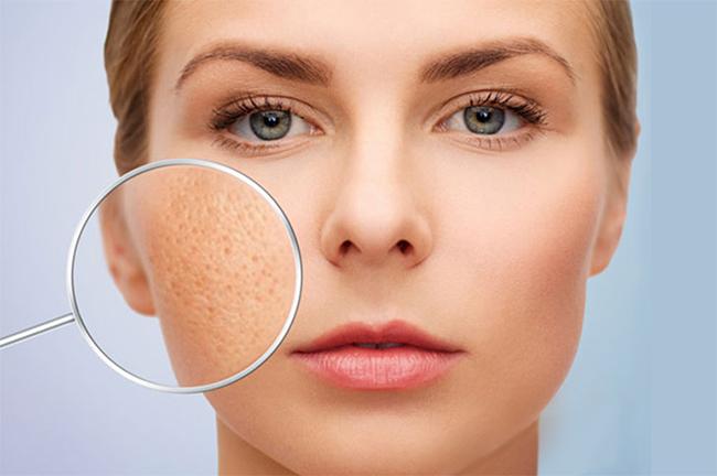 5 phương pháp trị sẹo rỗ lâu năm hiệu quả