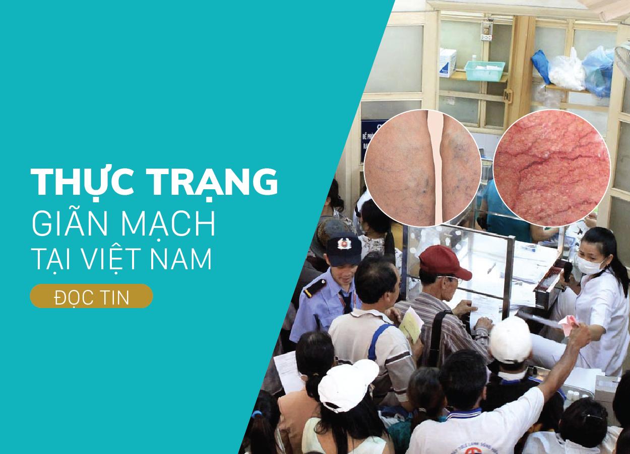 Giãn Mao Mạch là gì? Thực Trạng Giãn Mao Mạch Tại Việt Nam.